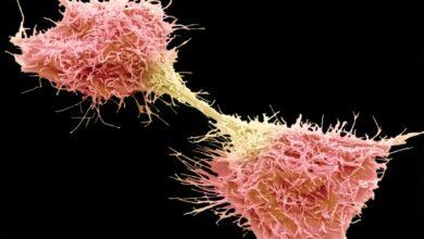 10 faits sur les cellules cancéreuses