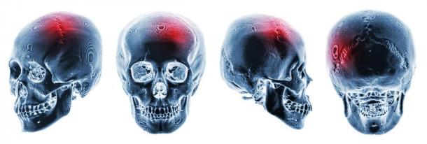 On pense que les capacités spéciales d'une personne issues de la mémoire génétique peuvent apparaître après un traumatisme important au cerveau. Radiographies de crânes humains présentant un traumatisme crânien apparent. (stockdevil / Adobe stock)