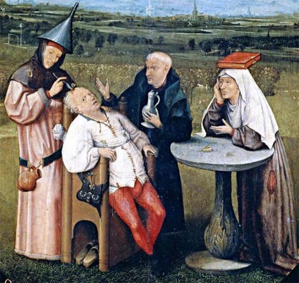 L'extraction de la pierre de la folie par Hieronymus Bosch. ( Domaine public )