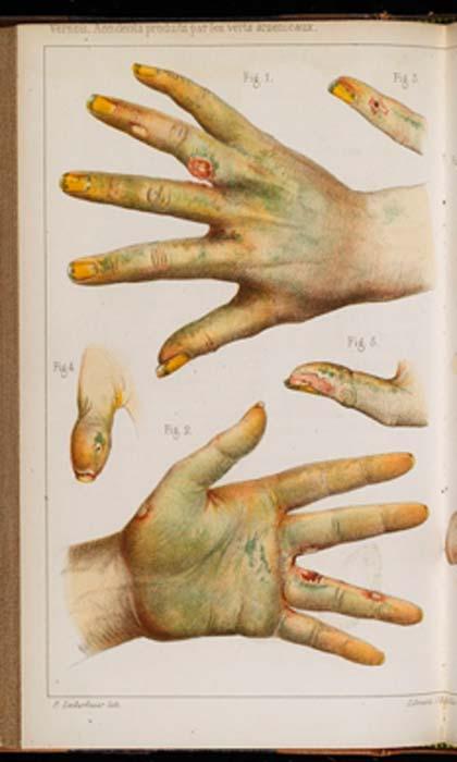 Dommages causés par l'utilisation d'arsenic vert, 1859, provenant du pigment vert de Scheele. (Fæ / CC BY-SA 4.0)