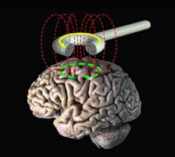Stimulation magnétique transcranienne - schéma. (Eric Wassermann, M.D. / Domaine public)