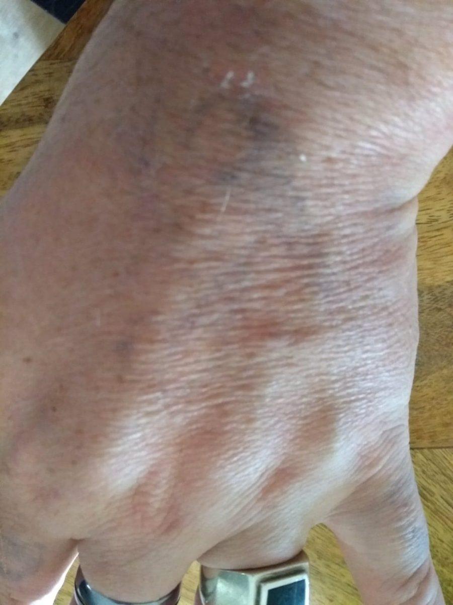 Tatouage à la main 1 semaine