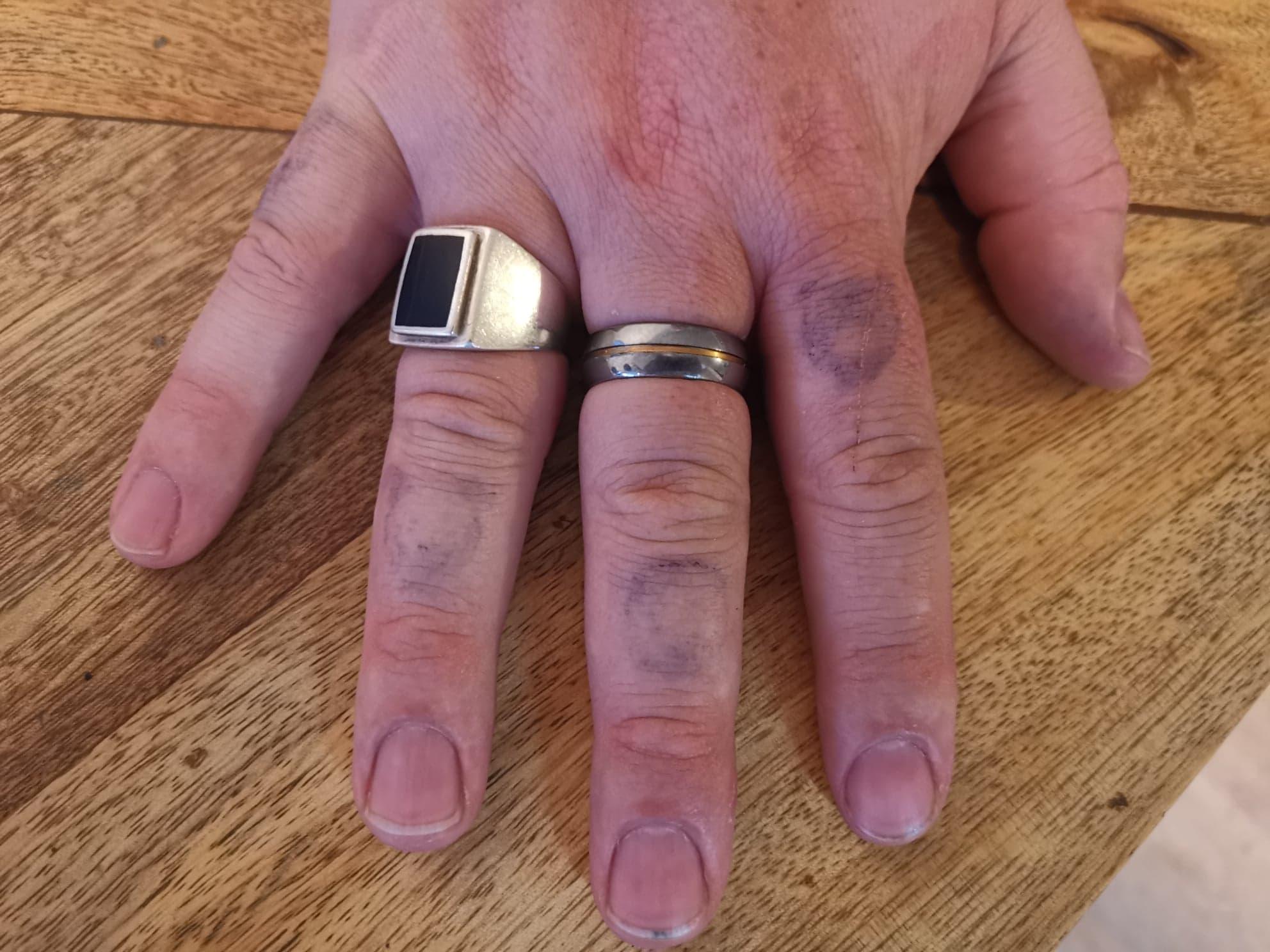 Six jours de doigts