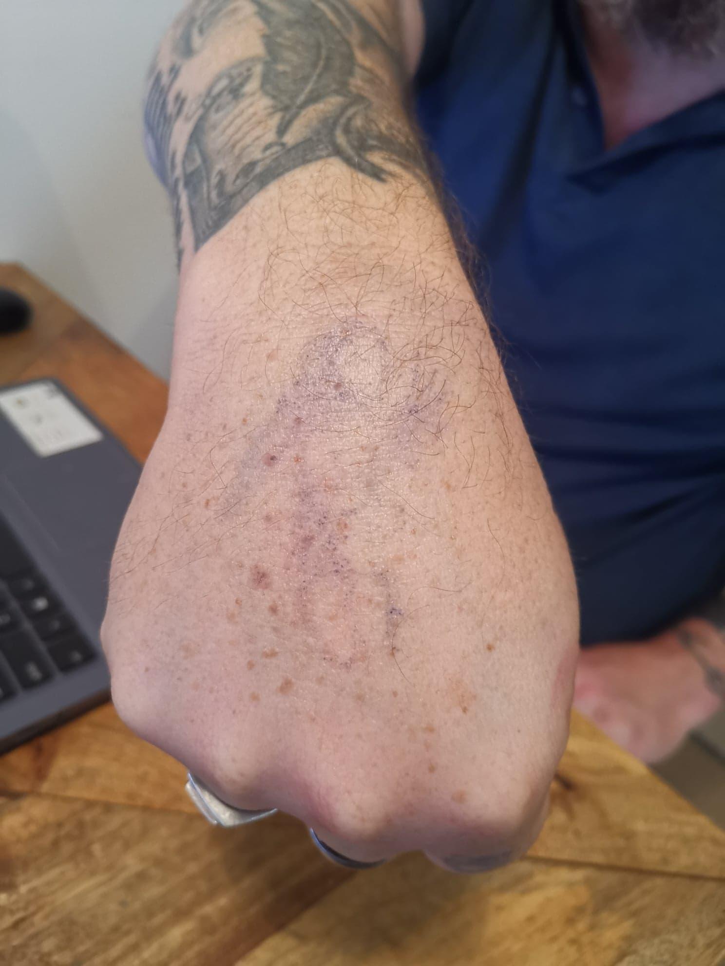Tatouages de mains après 6 jours