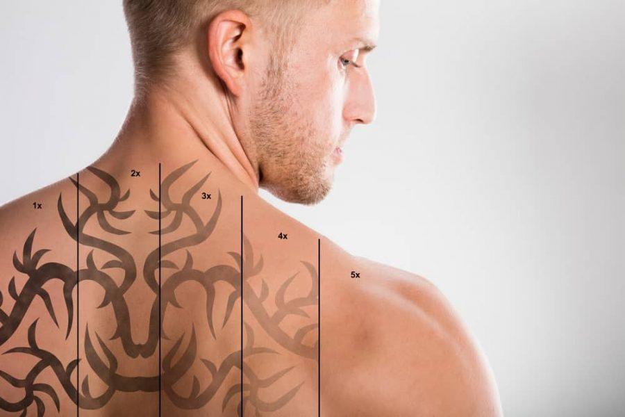 Un homme dont le tatouage a été progressivement effacé au laser