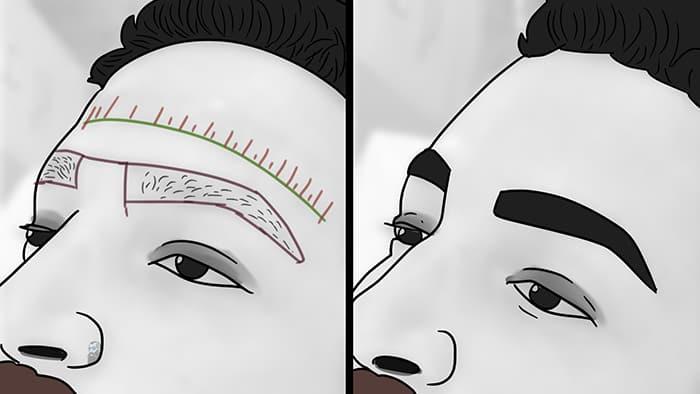 la microbalissure des sourcils