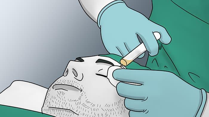 transplantation de sourcils