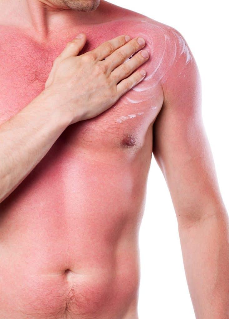 Peau rouge à cause d'un mauvais coup de soleil