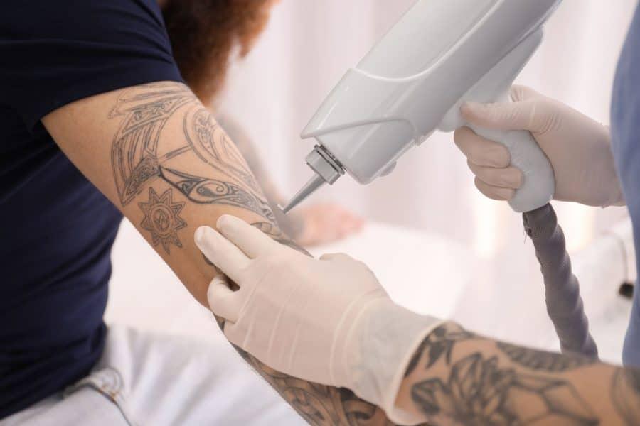 Tatouage au laser