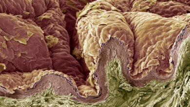 Photo de Les couches du système tégumentaire